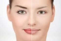 Лицо до и после лазерного удаления татуажа