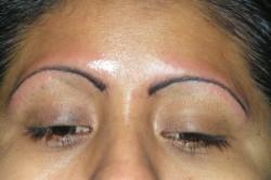 Воспаление кожи после проведения процедуры татуажа бровей