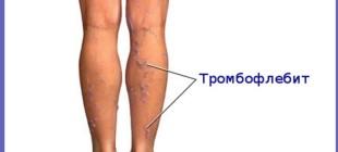 Признаки и последствия тромба в ноге