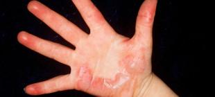 Почему у ребёнка может облазить кожа на пальцах рук и что с этим делать?
