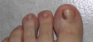Что может означать темно-красное пятно под ногтем большого пальца ноги