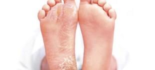Эффективные средства от натоптышей на ногах в наших аптеках