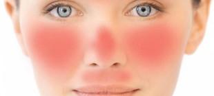По каким причинам может чесаться лицо, краснеть и зудеть шея