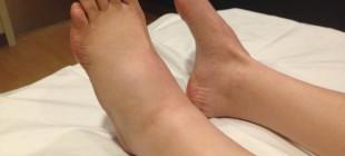 Что делать, если опухла нога в районе щиколотки и болит?