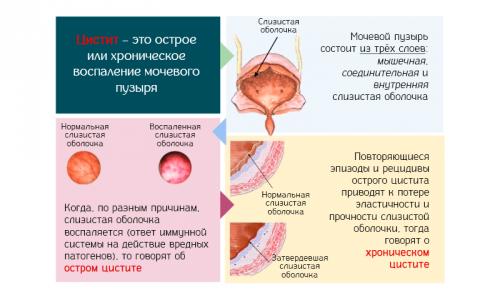 Острая форма характеризуется сильнейшими болевыми ощущениями во время мочеиспускания и болью при нажатии на область лобка. Хронический цистит, напротив, характеризуется вялыми ноющими болевыми ощущениями