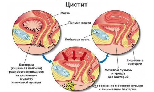 Воспаление больше присуще женщинам по причине укороченных мочевыводящих путей