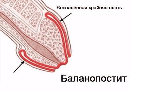 Баланопостит встречается у новорожденных мальчиков, у которых головка полового члена срослась с крайней плотью и не может нормально открываться