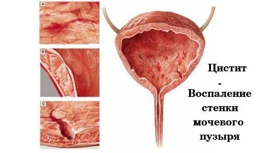 Беременность может спровоцировать развитие цистита