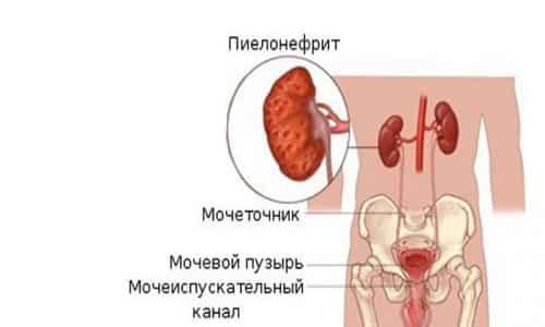 Независимо от формы цистита рецидив способен привести к такому заболеванию, как пиелонефрит