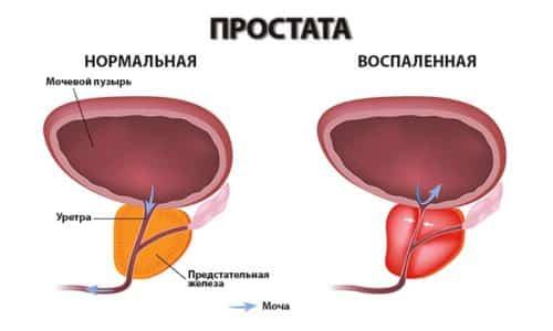 Простатит - наиболее распространенная мужская болезнь, которую лечит уролог