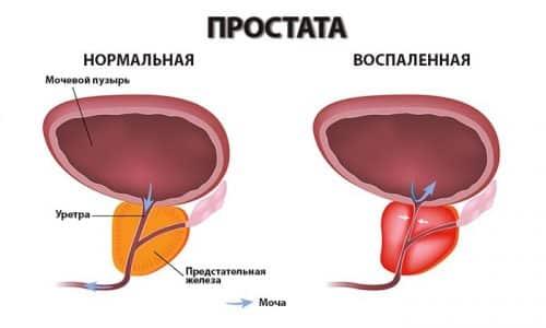 Жжение при мочеиспускании бывает при простатите и аденоме простаты