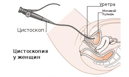 Цистоскопия - диагностическая процедура, подразумевающая забор тканей с помощью эндоскопических инструментов с последующим проведением гистологического анализа