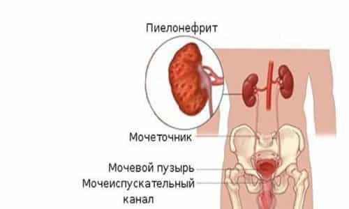 Наиболее опасным поражением органов мочеполовой системы, которое способен вызвать осложнившийся цистит, считается пиелонефрит