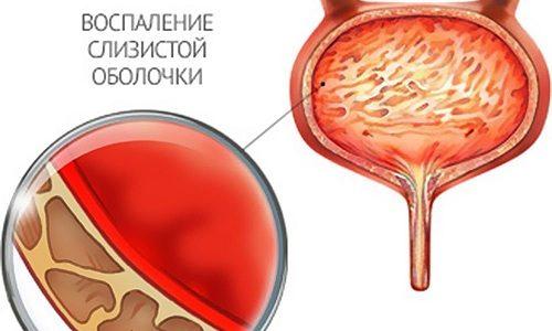 Хронический цистит в МКБ значится под кодом N30.02. Этот вариант течения цистита подтверждается, когда воспалительный процесс сохраняется на более чем 60 дней