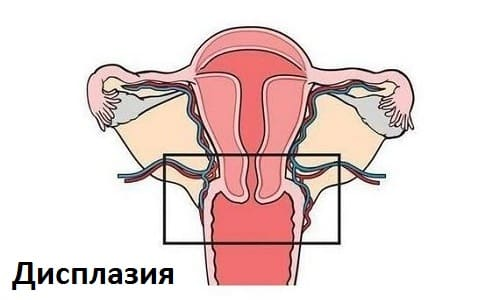 Один из признаков заражения вирусом у женщин развитие дисплазии - изменение поверхности клеток у шейки матки