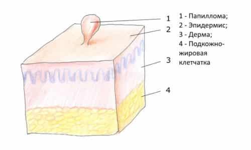 Кожные наросты вызываются вирусом папилломы человека (ВПЧ), причиняют массу неудобств и портят вид кожи